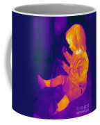 Thermogram Of A Young Girl Coffee Mug