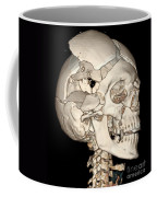 Three-dimensional Ct Reconstruction Coffee Mug