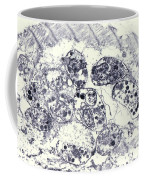 Toxoplasmosis Of Heart In Aids Tem Coffee Mug by Science Source