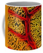 Vascular System Of The Epididymis Coffee Mug