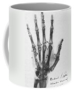 X-ray Of A Hand With Buckshot Coffee Mug