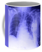 X-ray Of A Pacemaker Coffee Mug