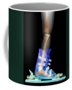 X-ray Of Broken Bones In Ski Boot Coffee Mug