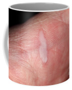 Burn On Hand Coffee Mug