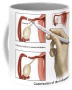 Cauterization Of The Fallopian Tubes Coffee Mug