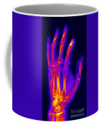 Finger Fracture Coffee Mug