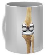 Knee Replacement Coffee Mug