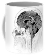 Normal Brain, Mri Coffee Mug