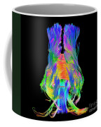 Brain Fiber Tracts, Dti Scan Coffee Mug