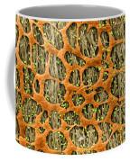 Myenteric Plexus, Sem Coffee Mug