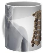 Cervical Vertebrae Coffee Mug
