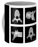 Human Vertebra T5, X-ray Coffee Mug