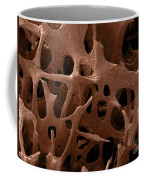 Human Bone, Sem Coffee Mug