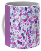 Bubbles Ix Coffee Mug