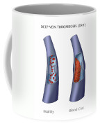 Deep Vein Thrombosis, Illustration Coffee Mug
