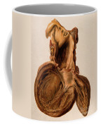 Diseased Heart, Aneurysm, Illustration Coffee Mug