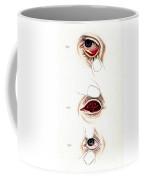 Eye Inflammations, Historical Coffee Mug