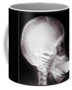 Foot In Mouth X-ray Coffee Mug