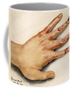 Hand With Roentgen Ray X-ray Coffee Mug