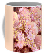 Human Intestinal Mucosa, Sem Coffee Mug