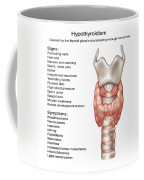Hypothyroidism, Illustration Coffee Mug