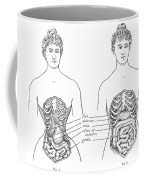 Medical Crimes Of The Corset, 1908 Coffee Mug