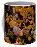 Microbial Discharge From Toothbrush Sem Coffee Mug