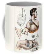 Operative Surgery, Illustration, 1846 Coffee Mug