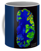 Pet Scan, Healthy Brain Coffee Mug