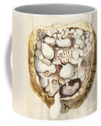 Placenta With Tumors, Illustration, 1836 Coffee Mug
