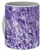 Purple, Purple, And More Purple Coffee Mug
