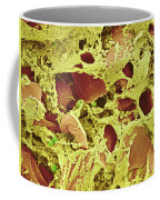 Sputum, Sem Coffee Mug