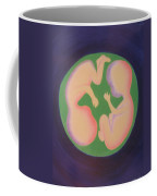 Twins In The Womb Coffee Mug