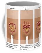 Types Of Incontinence Coffee Mug