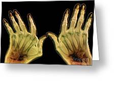 Arthritic Hands, X-ray Greeting Card
