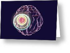 Brain Cancer Treatment Greeting Card
