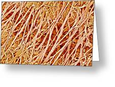 Connective Tissue, Sem Greeting Card