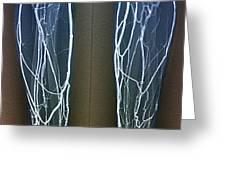 Forearm Veins, X-ray Greeting Card