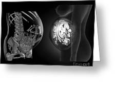 Full Term Foetus, Ct And Mri Scans Greeting Card