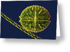 Green Algae, Light Micrograph Greeting Card by Science Photo Library