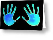 Hand Prints On Thermochromic Paper Greeting Card