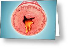 Infected Human Bronchus Greeting Card