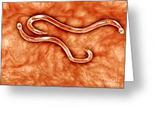 Microscopic View Of Hookworm Greeting Card