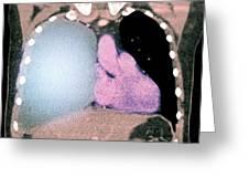 Pleural Effusion In Mesothelioma Greeting Card