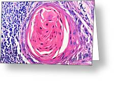 Squamous Cell Carcinoma, Keratin Pearl Greeting Card
