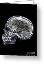 The Skull And Brain Greeting Card