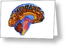 Normal Human Brain, Mri Scan Greeting Card