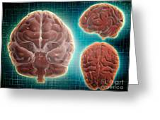 Conceptual Image Of Human Brain Greeting Card