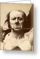 Duchenne's Physiognomy Studies, 1860s Greeting Card