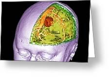 Brain Tumour Greeting Card